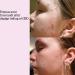 Emmas acne forsvandt efter dagligt indtag af CBD fra Natures-Help